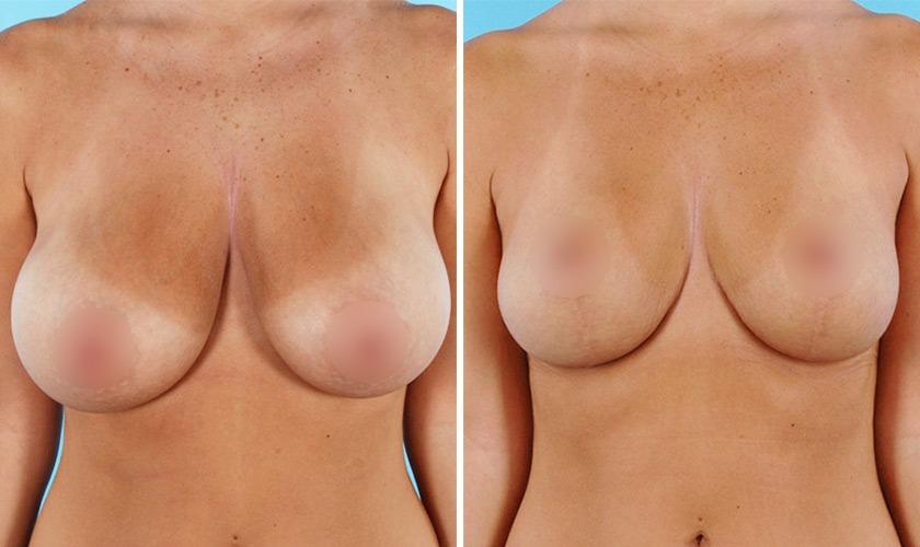 Подтяжка груди с 5 до 3 размера до и