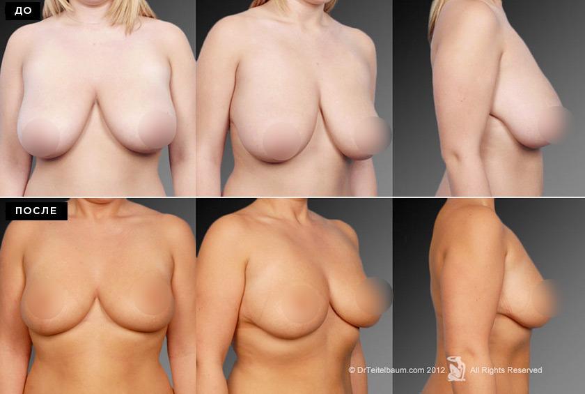 Уменьшение груди до и после