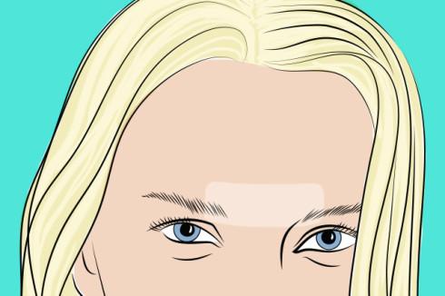 эпиляция одиночных волос
