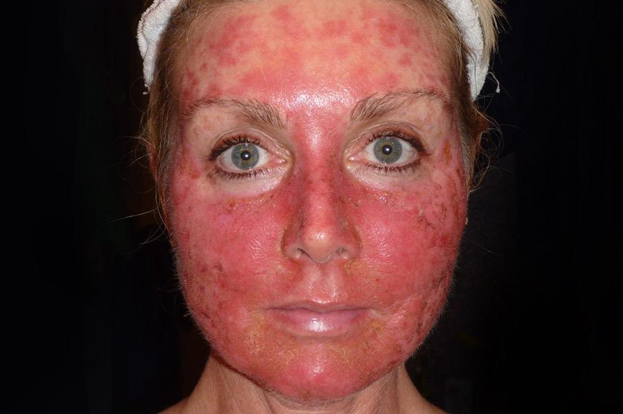 аллергия на коже пупырышки у ребенка