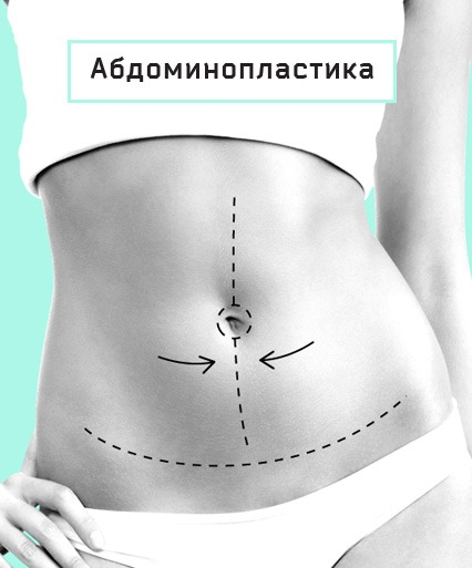 абдоминопластика