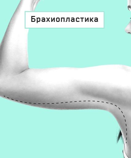 брахиопластика