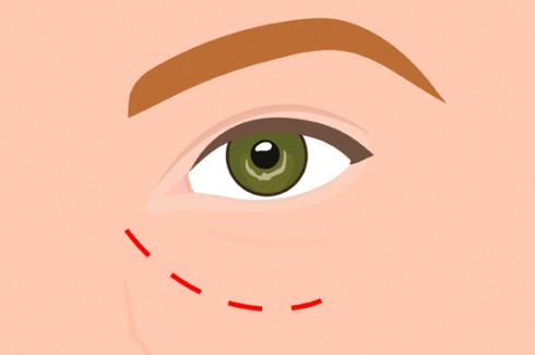лечение тёмных кругов под глазами