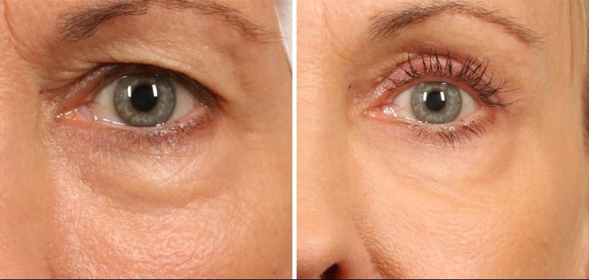 блефаропластика опухших глаз фото до и после