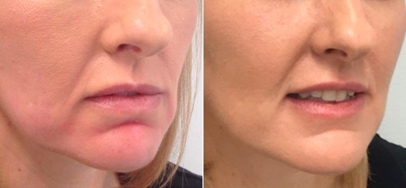 умеренное провисание рта
