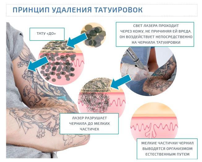 как лазер удаляет тату