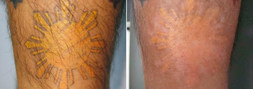 Удаление татуировок лазерами Picosure и Q-switched. Цены ...
