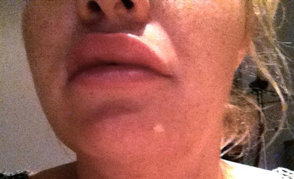 отек верхней губы через день после Ювидерм