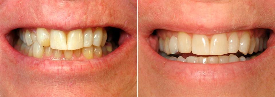 Как выровнять зубы без брекетов, способ выровнять зубы 47