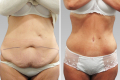 Полная абдоминопластика до и после