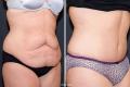 Абдоминопластика фото до и после