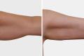 липосакция нижней части рук
