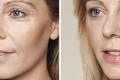 Биоревитализация лица гиалуроновой кислотой фото до и после