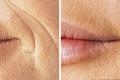 Уколы гиалуроновой кислоты в лицо фото до и после