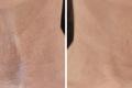 Биоревитализация шеи гиалуроновой кислотой