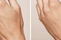 Биоревитализация рук фото до и после