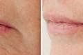 Инъекции гиалуроновой кислоты в губы и подбородок