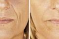 уколы гиалуроновой кислоты в лицо