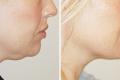 липосакция подбородка фото до и после