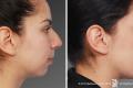 липосакция щек фото до и после