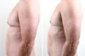 гинекомастия фото до и после