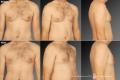 липосакция мужской груди