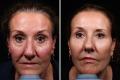 биоармирование лица фото до и после