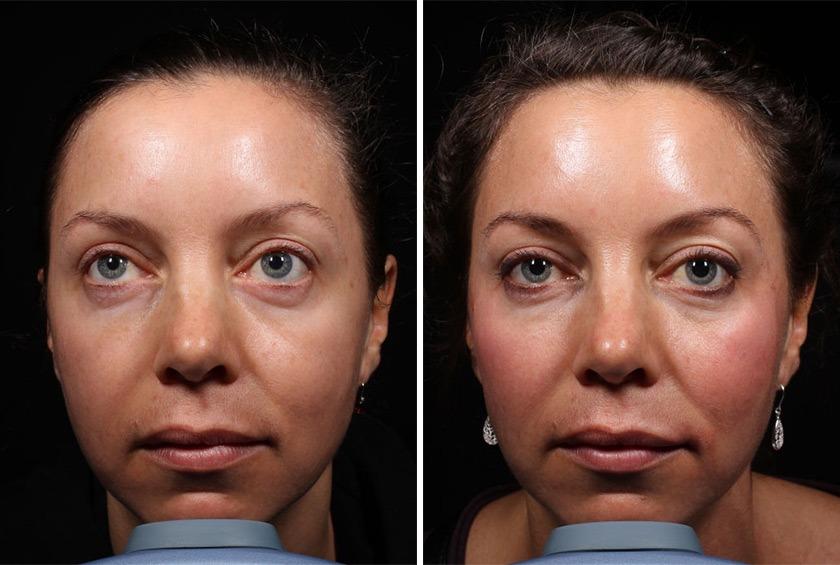 фото до и после гиалурон для лица
