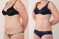 липосакция живота фото до и после