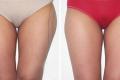 липосакция галифе на бедрах фото до и после