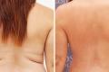 липосакция спины фото до и после;