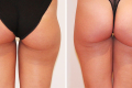 липосакция ягодиц фото до и после