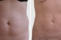 липосакция боков фото до и после