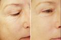 мезотерапия под глазами фото до и после