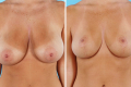 Подтяжка груди с 5 до 3 размера фото до и после