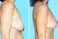 Подтяжка грудных желез фото до и после