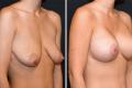 Подтяжка груди с увеличением имплантатами 375 мл