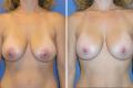 Мастопексия груди до и после