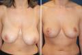 Подтяжка опущенной груди