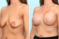 Подтяжка груди с одновременным увеличением имплантатами 500 мл