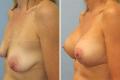 Пластика груди с увеличением силик