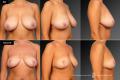Операция по уменьшению груди