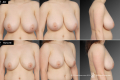 Уменьшение грудных желез
