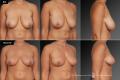 Уменьшение размера груди до и после;
