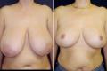 операция по уменьшению молочных желез