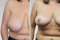 операция по уменьшению грудных желез до и после
