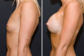 Операция по увеличению груди до и после
