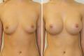 Увеличение груди до 3 размера