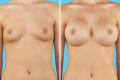 Увеличение груди солевыми имплант