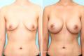 Пластика груди до и после
